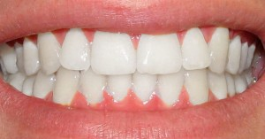 dientes-caries