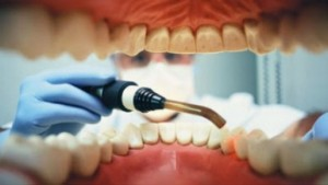 causas del miedo al dentista