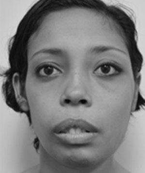 importancia de deteccion de asimetrias faciales 2
