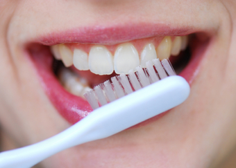 dos semanas sin lavarse los dientes