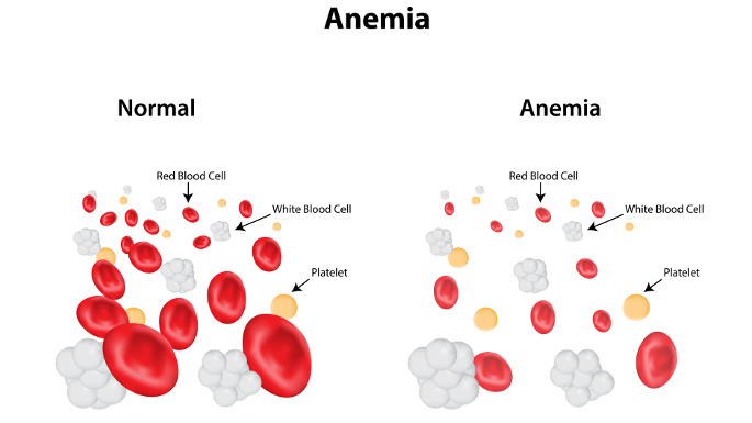 anemia-2