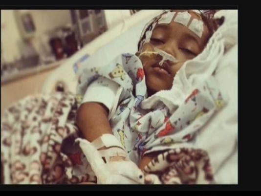 niña sufre daño cerebral en el odontologo