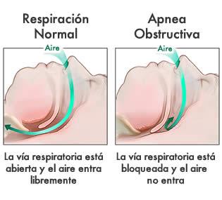 apnea del sueño - dentistas 2