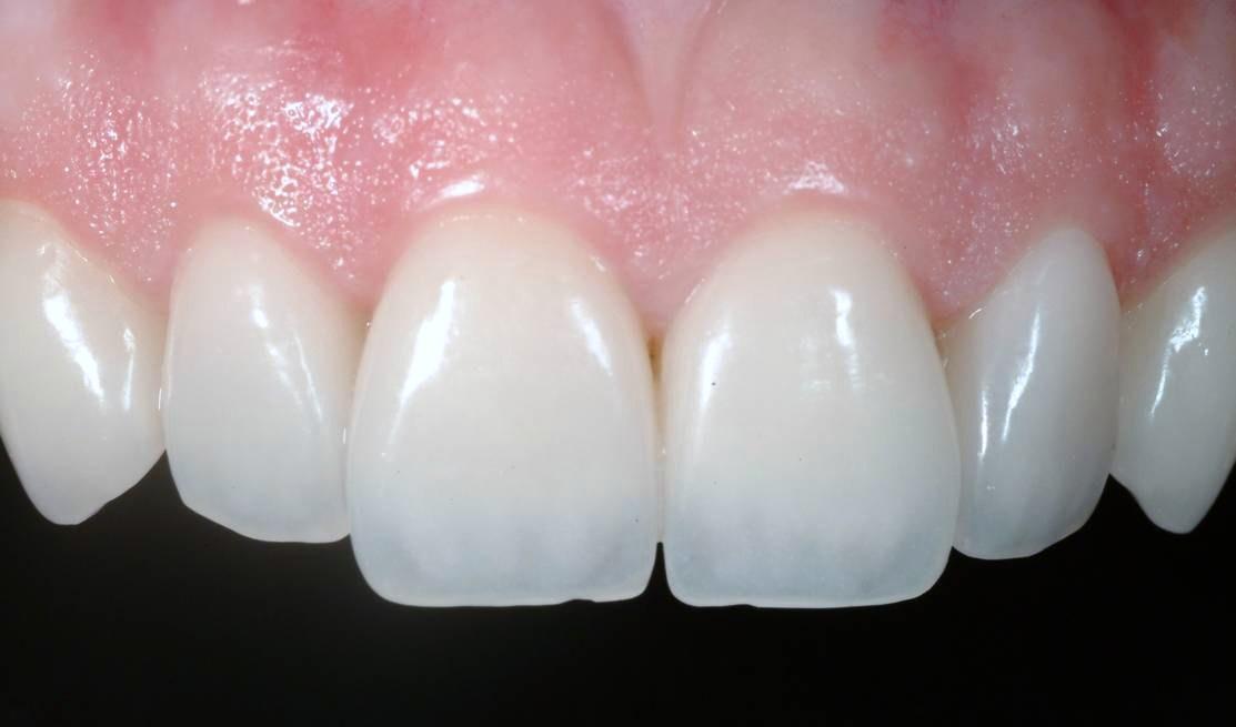 dientes incisivos superiores