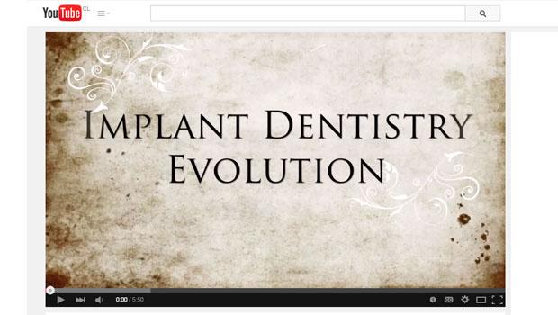 Historia de la Implantología Oral